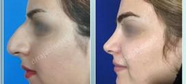 جراح بینی در لاهیجان