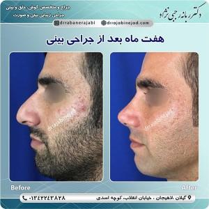 جراحی بینی لاهیجان