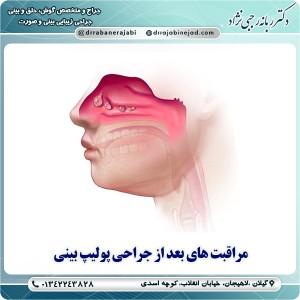 مراقبت های بعد از جراحی پولیپ بینی