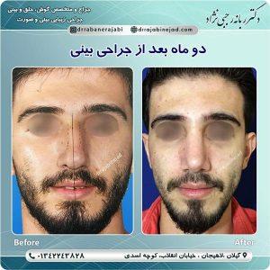 بهترین جراح بینی در لاهیجان