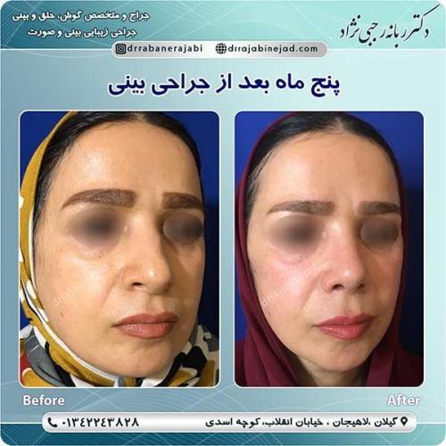 جراحی-بینی-لاهیجان-456