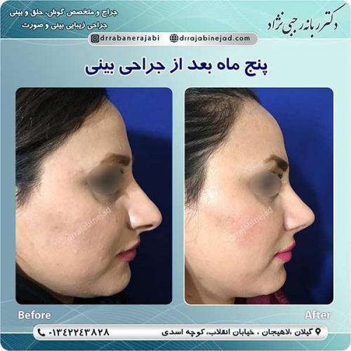 جراحی-بینی-لاهیجان-460