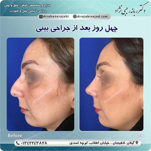 جراحی-بینی-لاهیجان-476